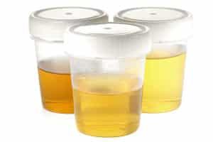 Für einen Abstinenznachweis können der Urin oder die Haare untersucht werden.